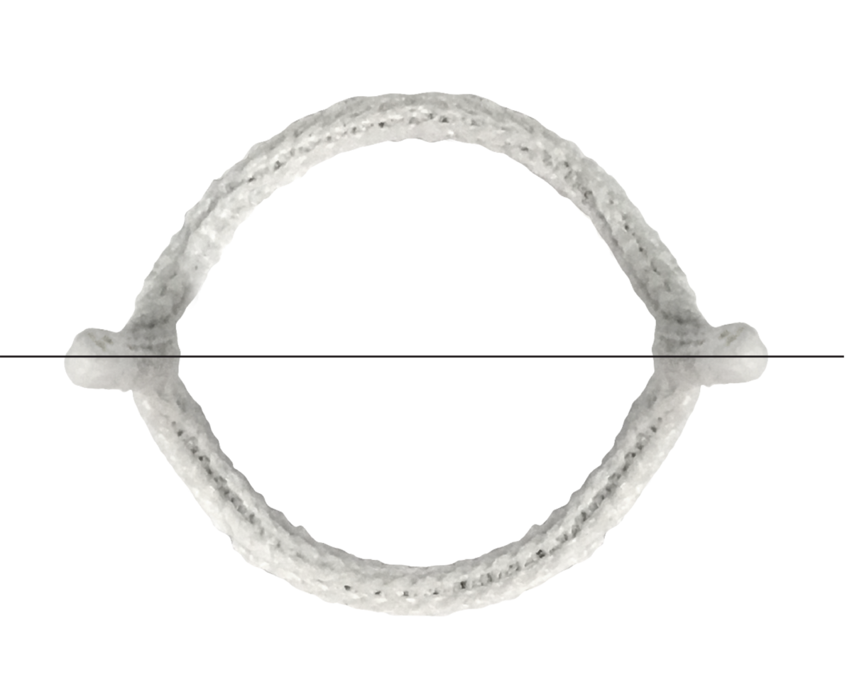 HAART 200 Aortic Annuloplasty Device - topview