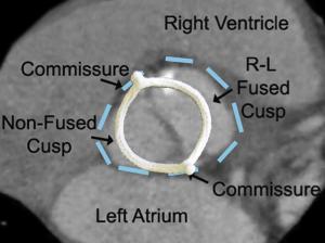 HAART 200 Aortic Annuloplasty