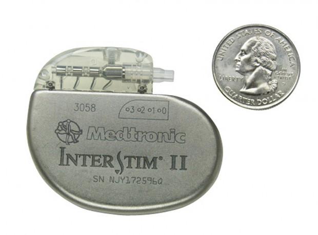 InterStim Bladder Modulation, Bladder Modulator, Sacral Nerve Stimulation