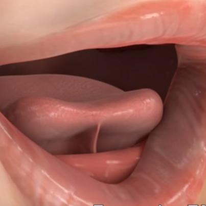 Tongue Tie Release