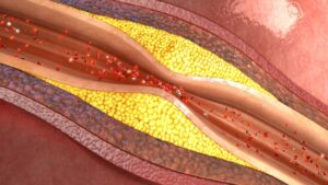Narrowing Arteries Diagnosed At Heart and Health Medical Vascular Lab