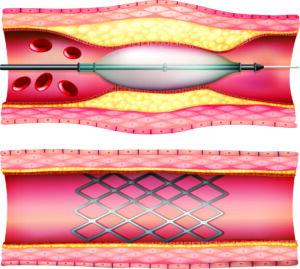 angioplasty near me