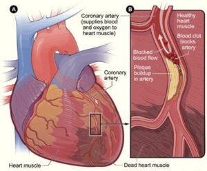 Coronary Artery Disease can cause a heart attack