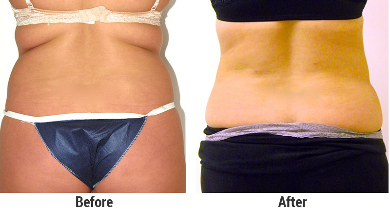 Tumescent Liposuction