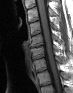 Degenerative Disc Disorder MRI