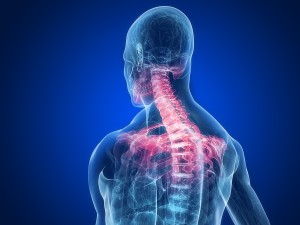 Cervical Radiculopathy - pinched nerve