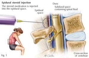 Transforaminal Epidural Steroid Injection