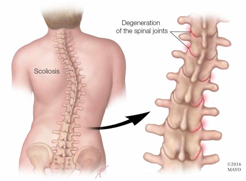 degenerative scoliosis