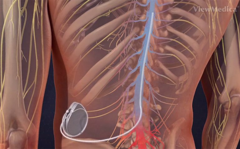 intrathecal pain pump