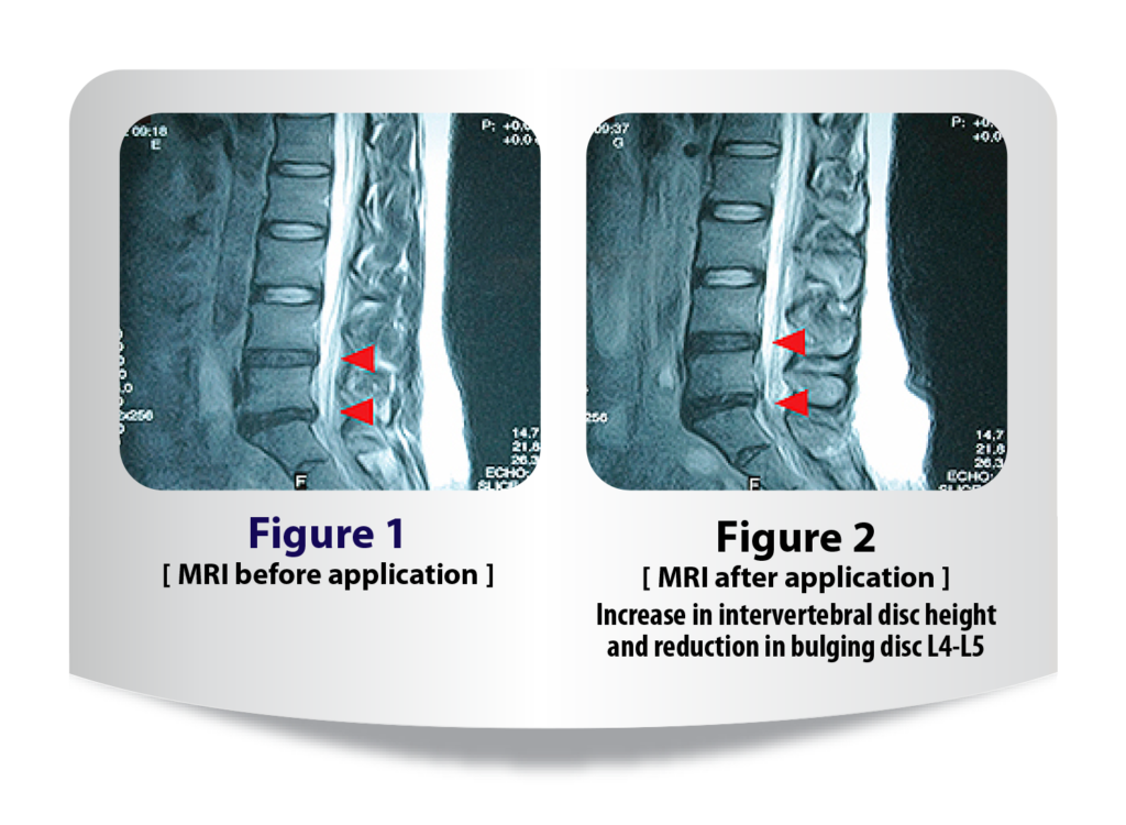 MRI view of before and after lumbar brace