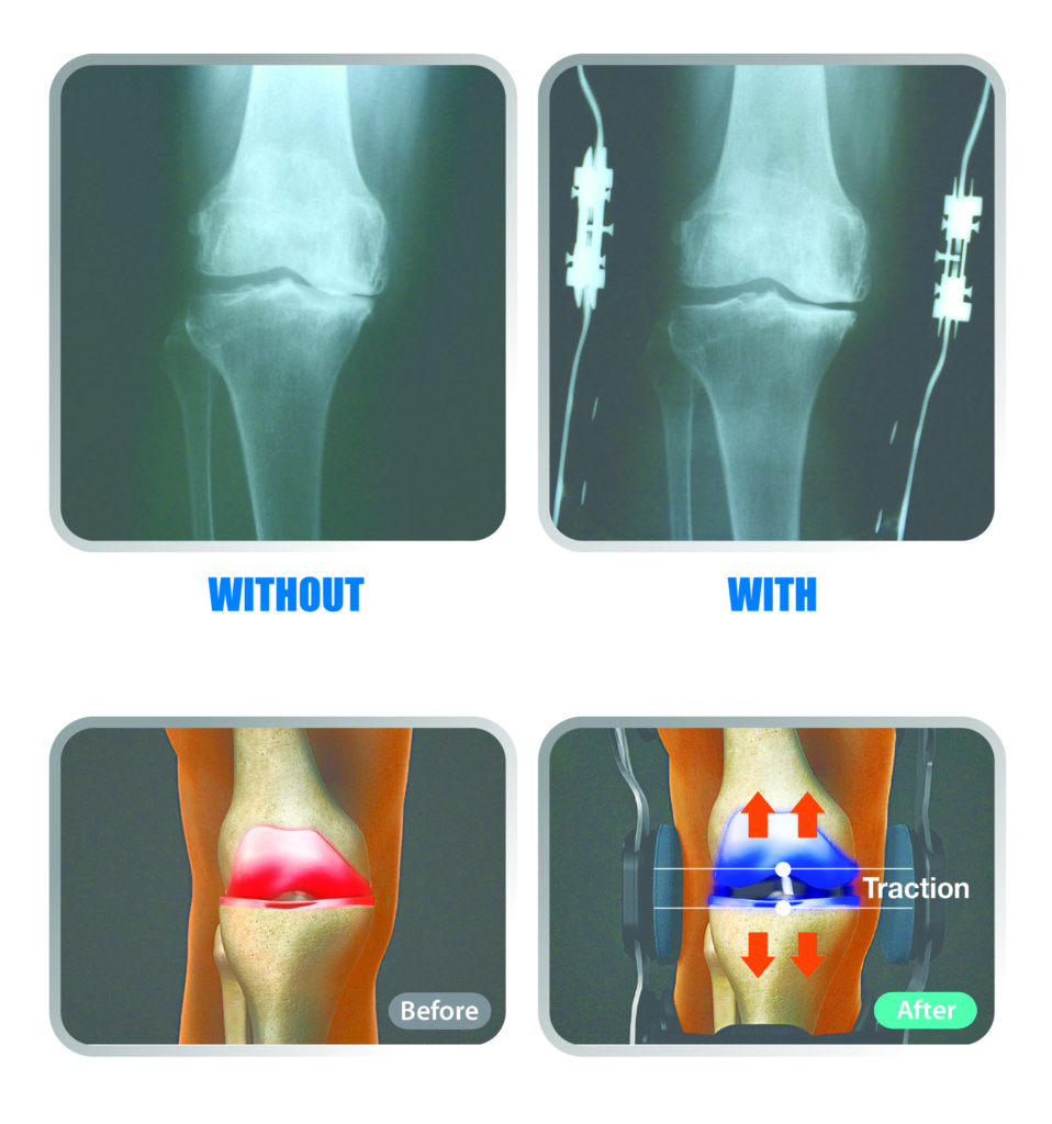 knee brace before and after