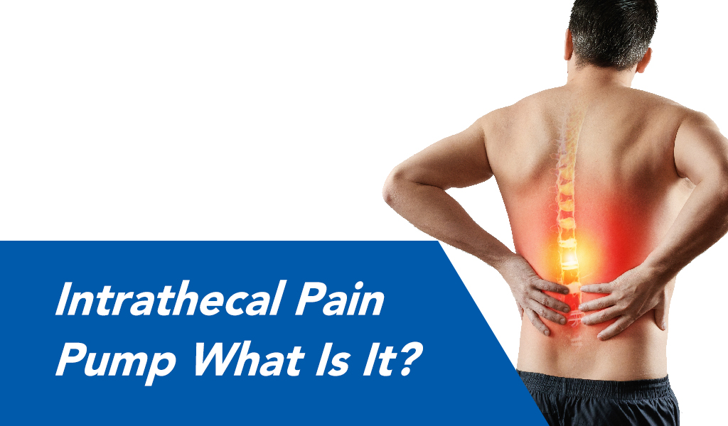 what is a pain pump?