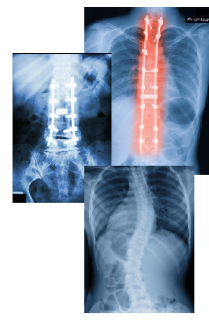 xrays of failed back surgery and scoliosis