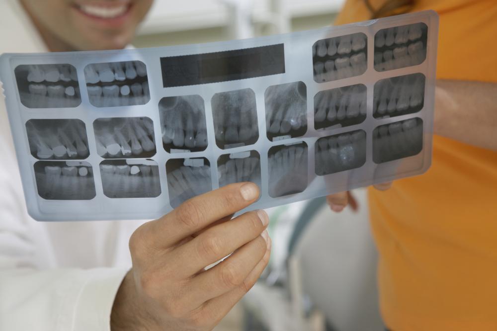 Crowns dentist conway ar