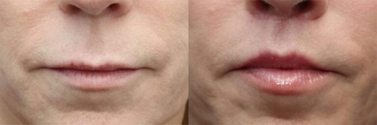 lip lift procedure san diego