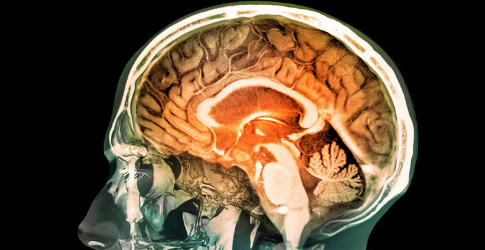 'Outlandish' competition seeks the brain's source of consciousness