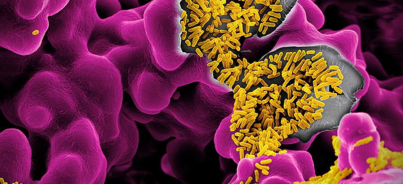 People who live to 100 have unique gut bacteria signatures