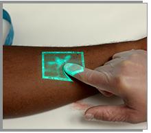 Christie VeinViewer Radiology