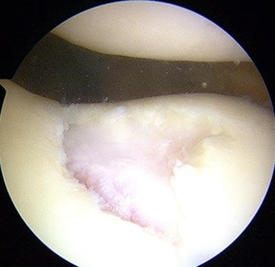cartilage2