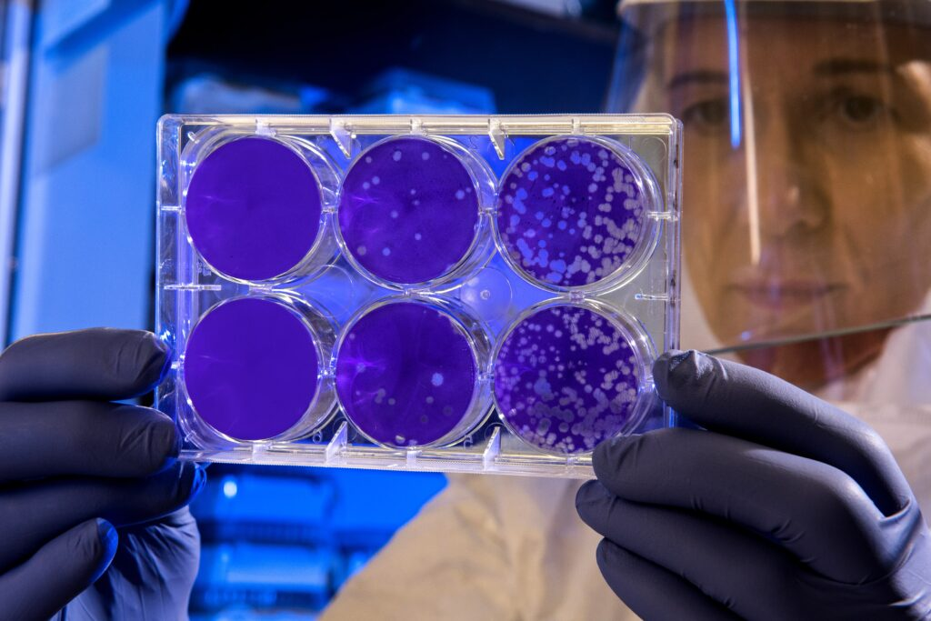 Photo of scientist looking at petri dishes - may or may not be coronavirus. Photo by CDC on Unsplash