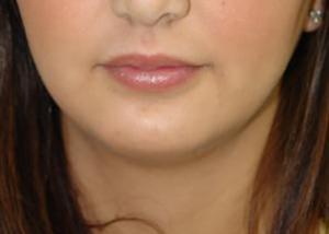 chin-augmentation-cheek-plastic-surgery-beverly-hills-woman-after-front-dr-maan-kattash2-2