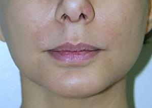 chin-augmentation-cheek-plastic-surgery-los-angeles-woman-after-side-dr-maan-kattash2-2