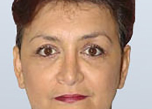 facelift-cosmetic-surgery-claremont-upland-woman-after-front-dr-maan-kattash