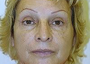 facelift-plastic-surgery-los-angeles-woman-after-front-dr-maan-kattash