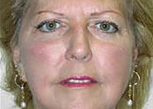 facelift-plastic-surgery-rancho-cucamonga-woman-after-front-dr-maan-kattash