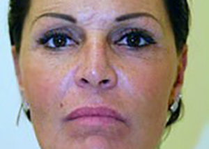 neck-lift-eyelid-lift-plastic-surgery-beverly-hills-woman-after-front-dr-maan-kattash