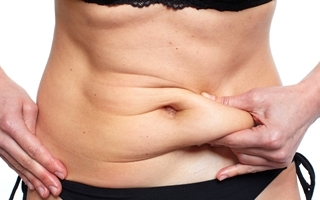 A good candidate for tummy tuck surgery isthe patient with a skin overhang, moderatediastasisand stretch marks below the belly button.