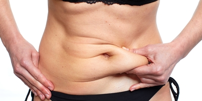 Who is a Good Candidate for Tummy Tuck?