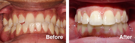 Dentist in Woodlawn Chicago