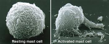 Mast Cell Activation Syndrome (MCAS): What Is Going On Inside My Body?