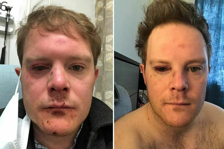 This Actor Was Almost Blinded in a Subway Attack
