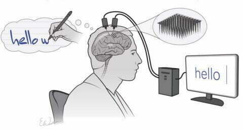 New Brain Implant Turns Thoughts into Text