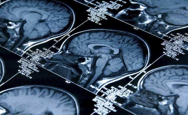 Human Brain Scans