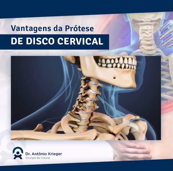 Vantagens da Prótese de Disco Cervical