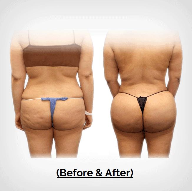 Brazilian Butt Lift Plastic Surgery Payment Plans