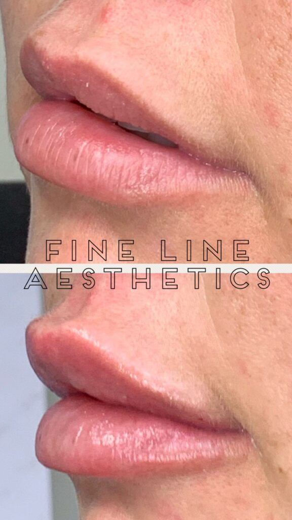 Before and after image of lips