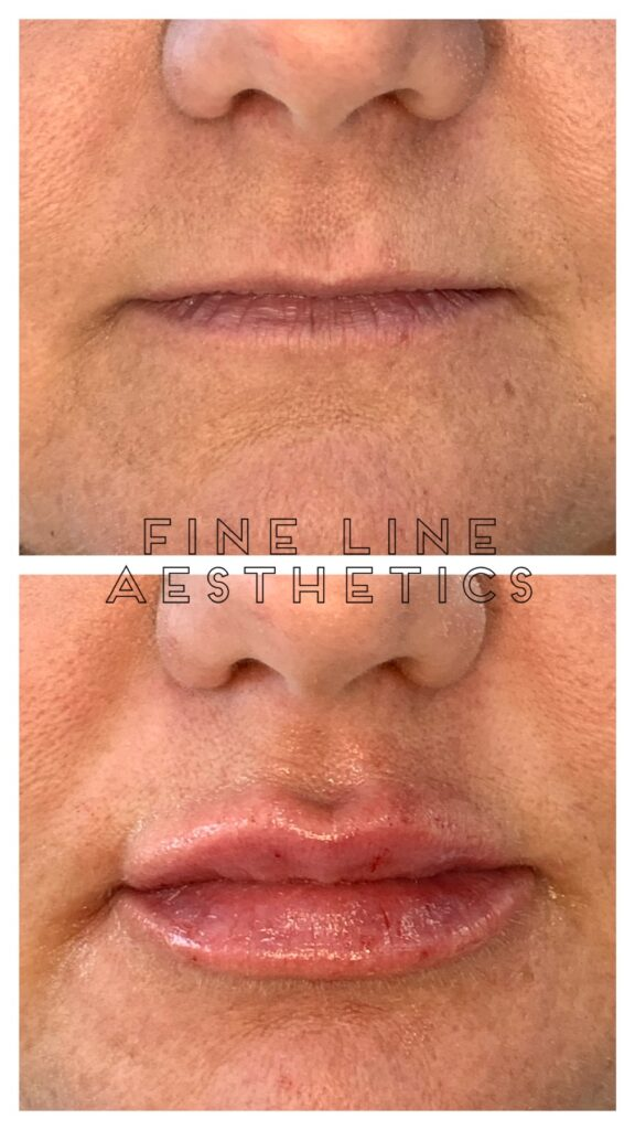 before and after lips