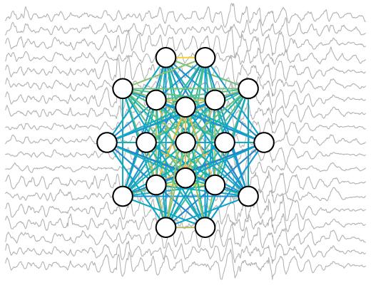Quantitative EEG biomarkers for neurodevelopmental disorders