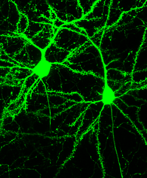 Two neurons filled with a GFP label