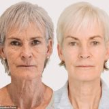 Judy Murray, after her amazing Morpheus8 transformation – image credit to Dr Judy Todd