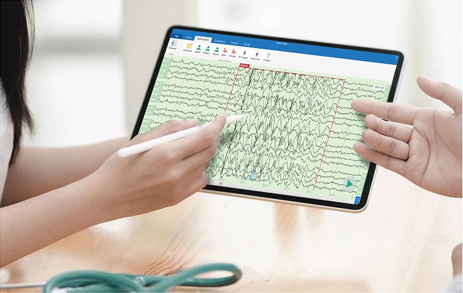 Zeto Dry EEG Technology