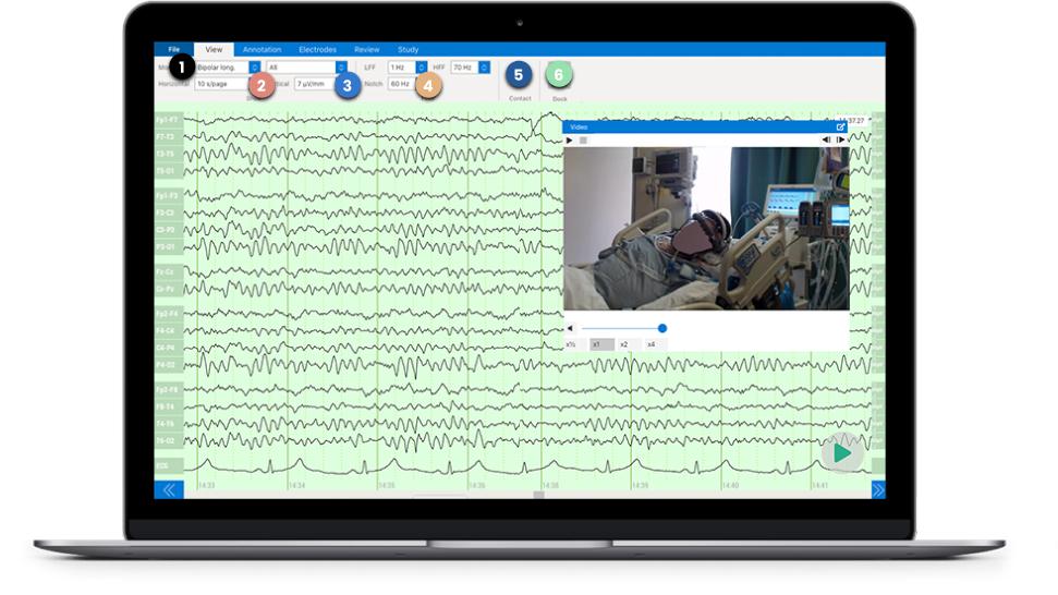 Zeto Brain Wave Monitoring Device Cloud Platform