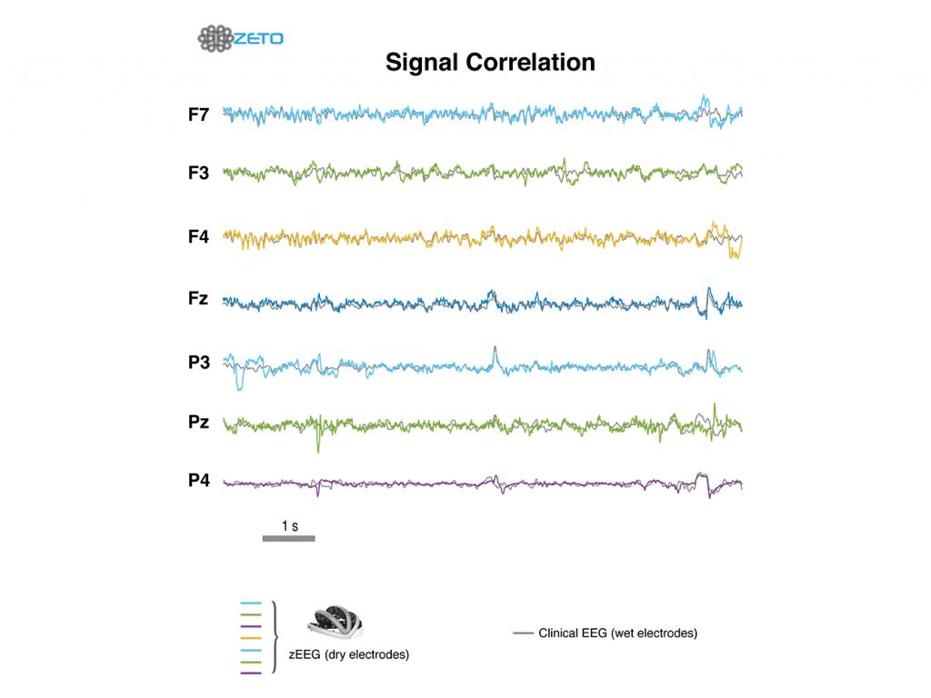 Zeto Dry EEG Headset Signal Correlation