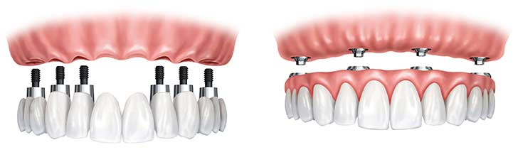 Implant Dentures South Tampa Floria