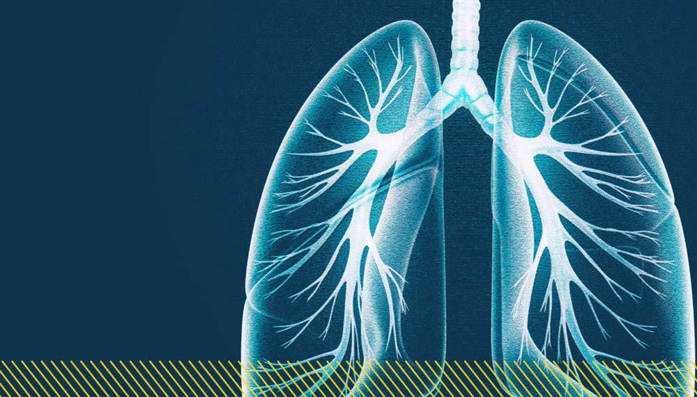 respiratory distress workflow
