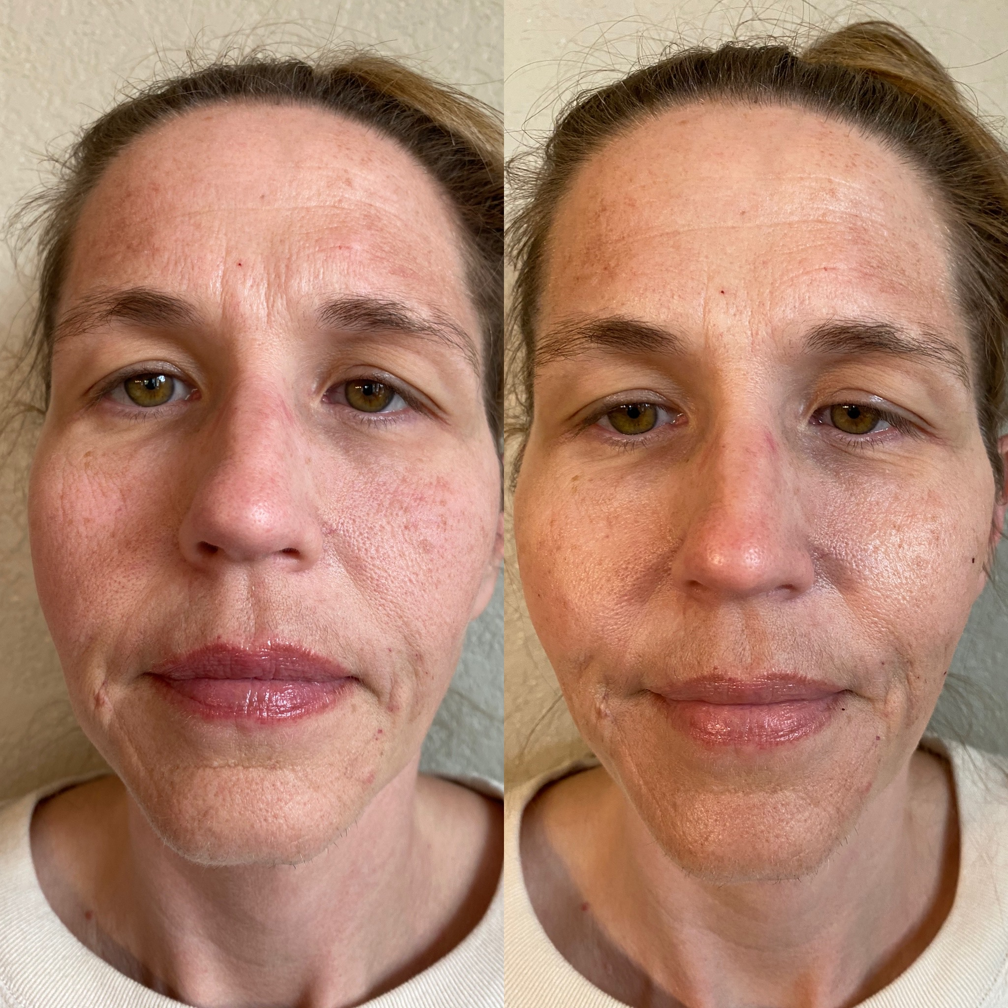 Chin & Mud Face Filler Before After 1